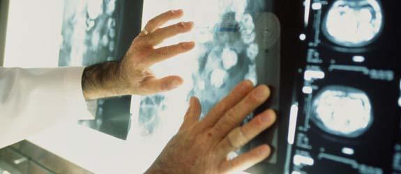 Болезнь Альцгеймера: лечение, признаки, симптомы, стадии